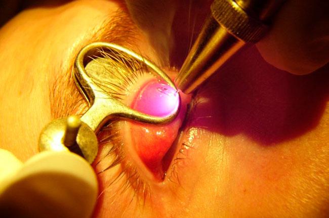 Менее травматичным и более эффективным считается лазерное удаление халязиона, при котором после удаление гноя швы не накладываются, а срастание прооперированной области происходит в естественных условиях