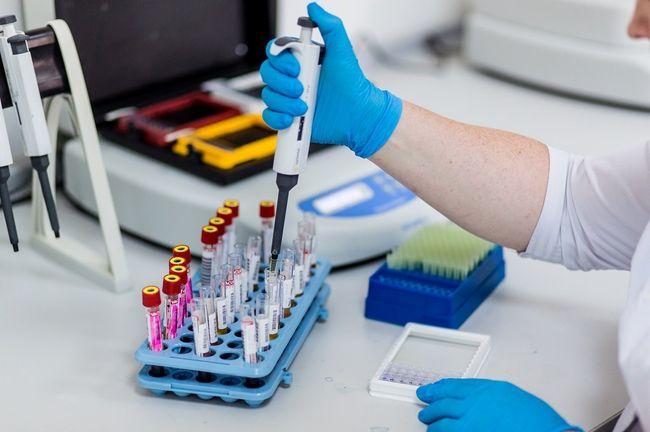 В современной медицине анализ на хеликобактер пилори (Helicobacter pylori) назначается практически всем пациентам с язвенной болезнью желудка и/или двенадцатиперстной кишки