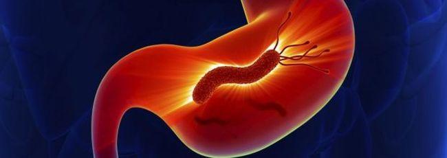 Впервые о спиральных бактериях, обитающих в желудке, заговорили в конце XIX века. То, что они могут причинять вред здоровью человека, доказали только на исходе XX столетия