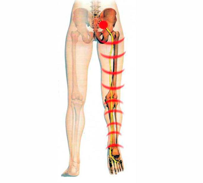 Воспаление седалищного нерва – патологический процесс, характеризующийся поражением самого крупного нервного ствола в человеческом организме