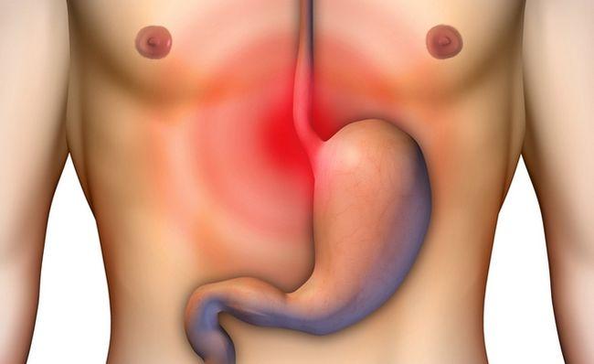 Чаще всего изжога появляется при попадании желудочного содержимого на стенки пищевода