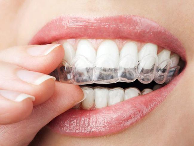 Перед применением зубной капы, необходимо посетить стоматолога для подготовки зубов к процедуре