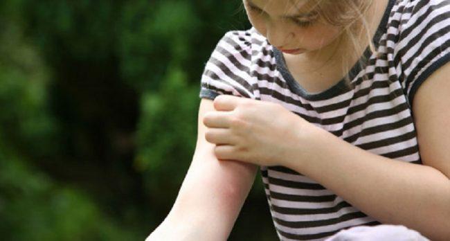 Во избежание расчесывания укуса и попадания в него инфекции после обработки укус лучше заклеить пластырем
