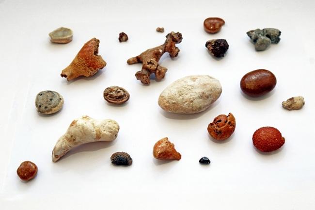 Камни в почках можно разделить на такие выды: оксалатные, уратные камни, фосфатные, карбонатные, цистиновые конкременты, белковые камни