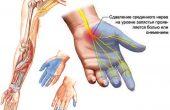 Почему немеет левая рука с пальцами или кисть руки и чем это может быть опасно? Причины, симптомы и лечение онемения пальцев рук + 10 видео