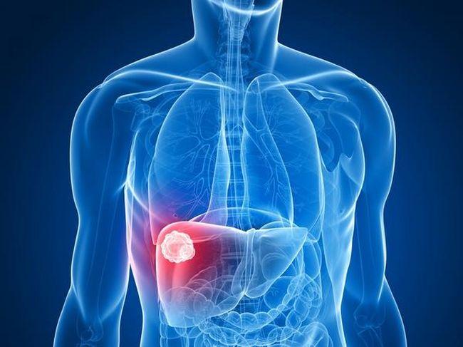 Отсутствие лечения кисты печени может иметь летальный исход