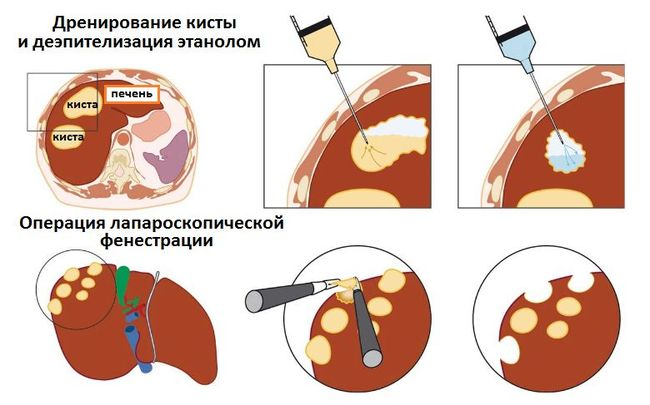 На фото показано как проходит операция по удалению кисты из печени.