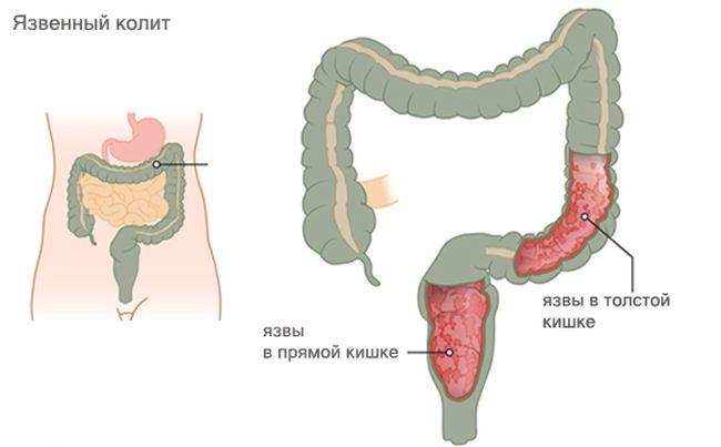 Язвенный колит кишечника относится к хроническим заболеваниям