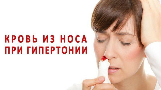 Носовое кровотечение может быть у человека страдающего гипертонией