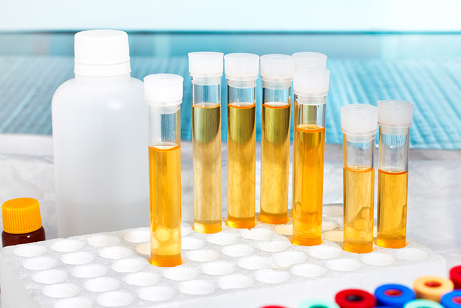 Прежде чем приступать к лечению необходимо пройти полную диагностику и сдать ряд анализов для выявления причины этого недуга