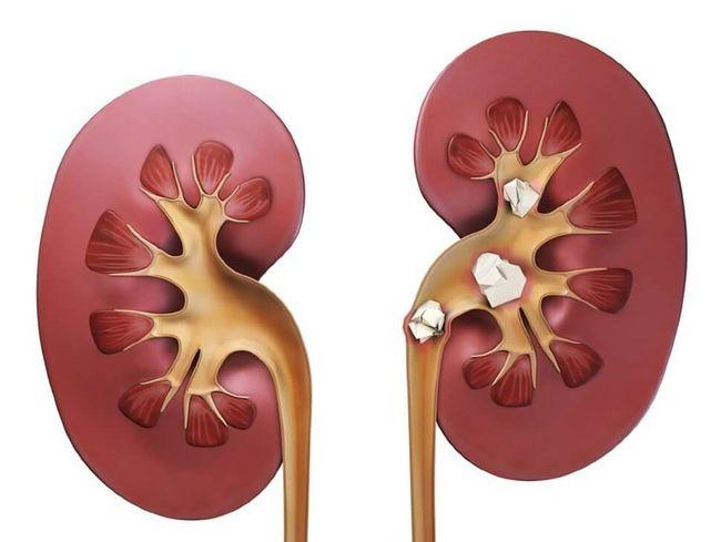 Мочекаменная болезнь - одна из причин крови в моче мужчины.