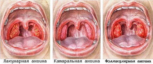 Основные виды ангины:герпетическая ангина, фолликулярная ангина, катаральный тонзиллит, Лакунарная ангина