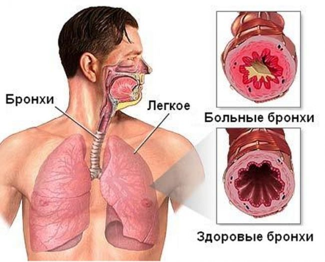 Бронхит - это воспалительное заболевание слизистой бронхиального дерева. В каком виде пребывают бронхи во время заболевания отчетливо видно на фото