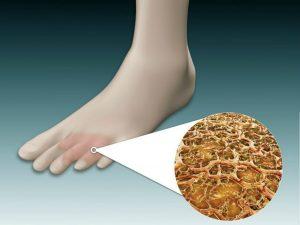 Данный вид грибка воздействует на кожу, поэтому между пальцами и участках возле них образуются покраснения и отслаивается кожа