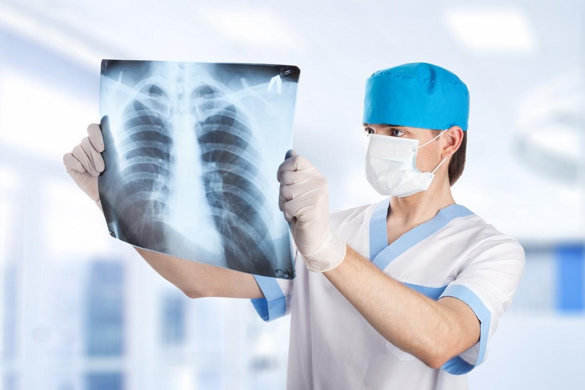Рак легких, лечение рака легких, как лечить рак легких, методы лечения рака легких