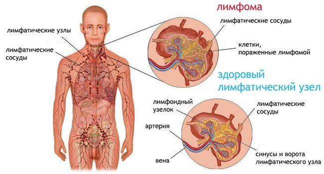 Лимфома и здоровый лимфатический узел