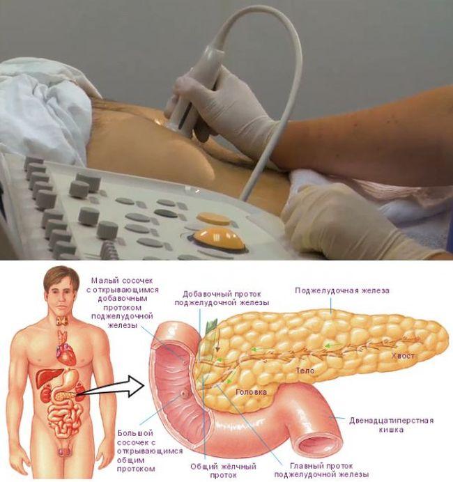 На УЗИ можно выявить аномалию поджелудочной железы и приступить к ее лечению