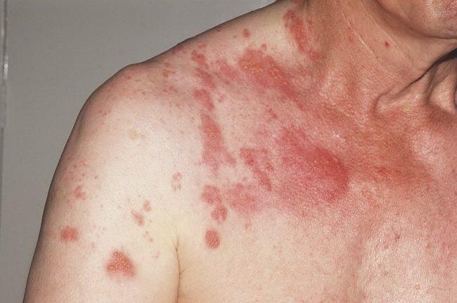 Опоясывающий лишай – это острое вирусное заболевание человека, характерными признаками которого являются высыпания на коже и симптоматика поражения нервной системы. Поскольку опоясывающий лишай вызывается тем же вирусом, что и ветряная оспа, эти два заболевания во многом сходны между собой
