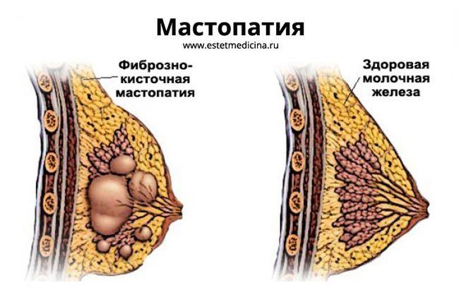 Мастопатия молочных желез – это общее название доброкачественных опухолей, которые возникают в груди