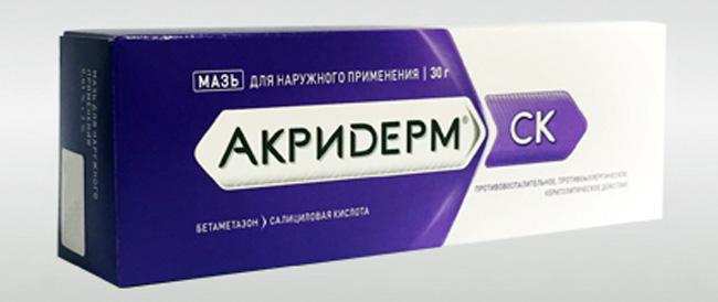 Особенности применения мази Акридерм при псориазе
