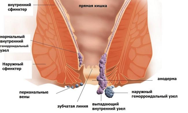 Геморрой – крайне неприятное заболевание, которое влечет за собой болевые ощущения в области анального отверстия, а также кровотечение и зуд