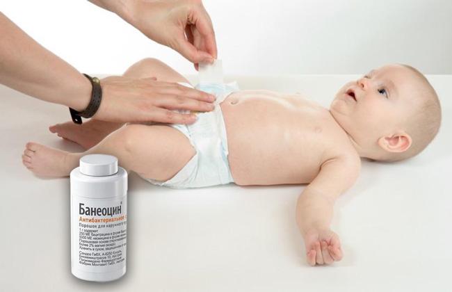 Порошок Банеоцин применяют для обработки пупка у грудничков, благодаря высокой эффективности препарата, поэтому процесс заживления пупочной раны длится от 2 до 5 дней