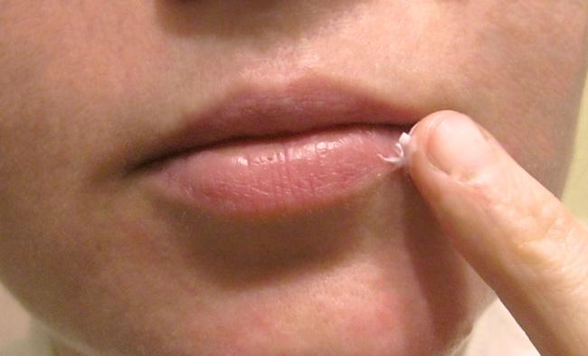 Препараты индийского происзводства, могут вызывать аллергическую реакцию