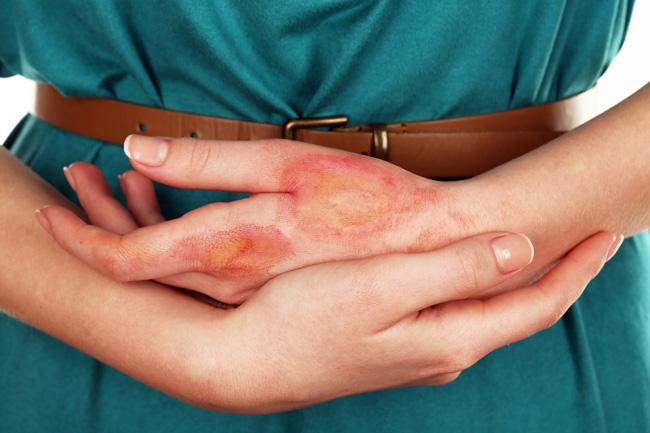 Всасывание в кровь гормональных составляющих Пимафукорта, может усилиться если на участке нанесения есть повреждения кожи