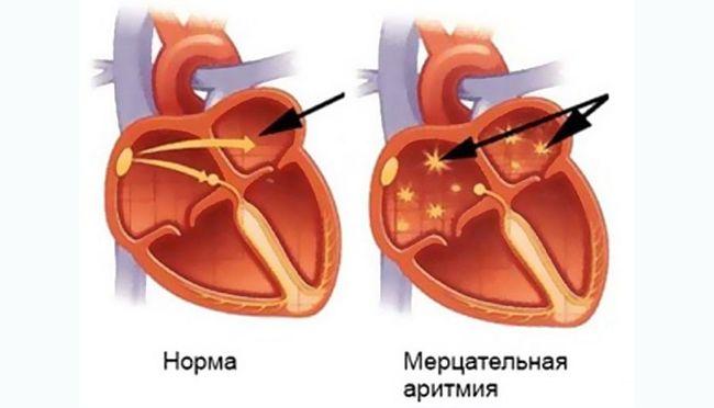 Мерцательная аритмия - одно из самых часто встречающихся явлений нарушения ритма сердца
