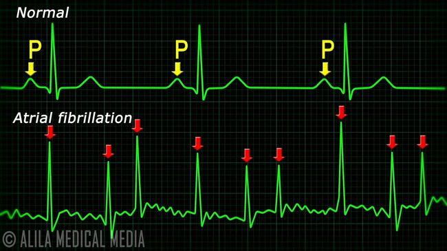 ЭКГ - помогает отследить нарушения в сердечном ритме