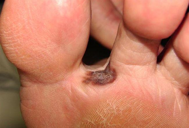 Меланома на ступне ноги
