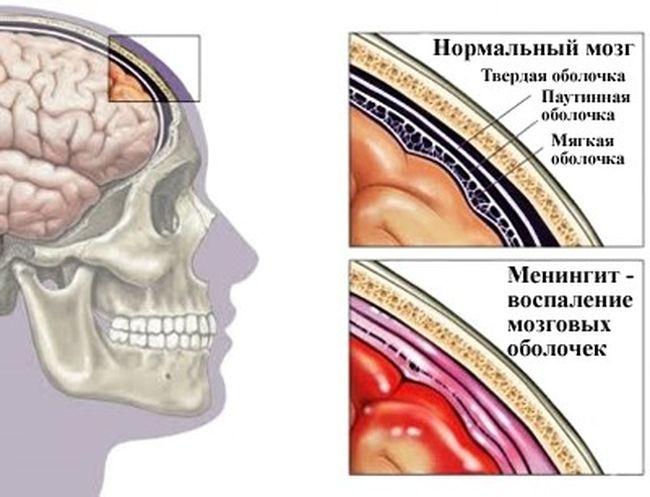 Менингит – это опасное заболевание, представляющее собой воспаление оболочки головного (чаще) или спинного мозга
