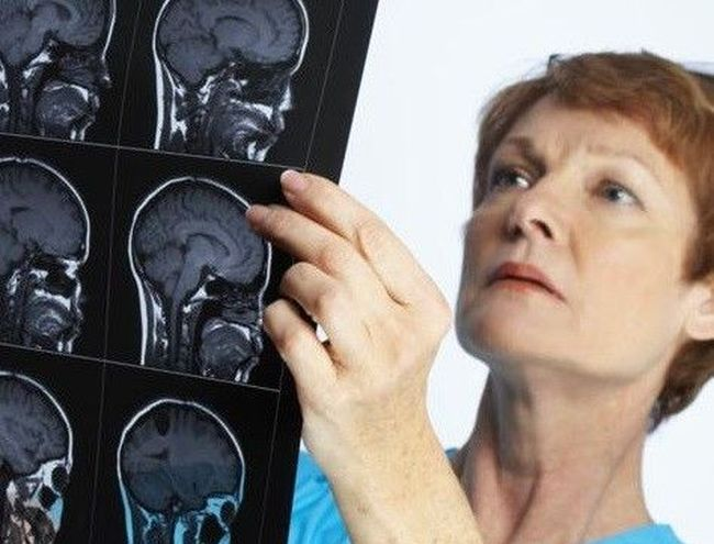 Нельзя самостоятельно лечить менингит, так как при неправильном подборе лекарств вероятен летальный исход