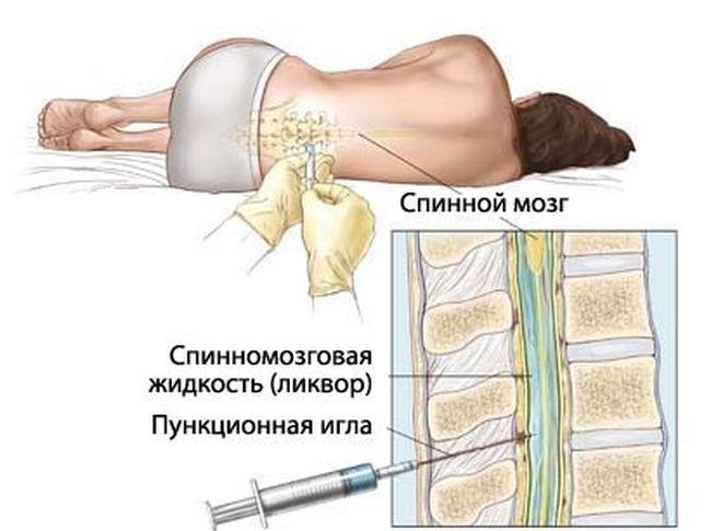 После того, как симптомы менингита были обнаружены, больного направляют на спинномозговую пункцию