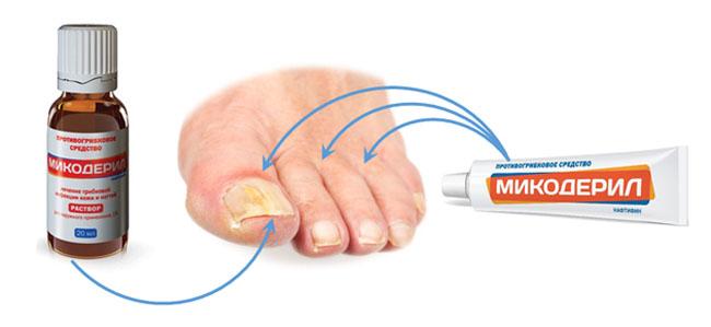 Микодерил выпускается в 2 фармакологических формах