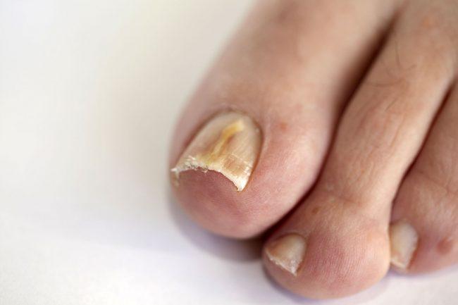 Признаки инфицирования - изменение цвета и расслаивание ногтя, утолщение и потеря прозрачности пластины