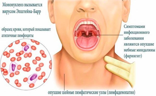 Данным заболеванием в основном болеют люди до 40 лет, после перенесенной болезни у всех вырабатывается стойкий иммунитет