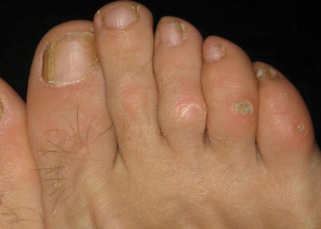 Очень часто мозоли могут осложняться бактериальной инфекцией, при этом боль и воспалительный процесс делают ходьбу на ногах болезненной и даже невозможной