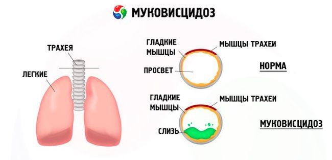 Муковисцидоз - это заболевание, которое нарушает работу многих органов внутри организма.
