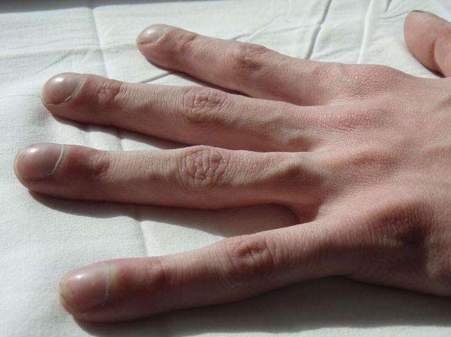 При муковисцидозе меняется форма пальцев рук.