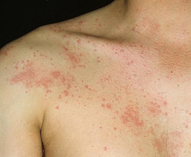 Налгезин может вызвать побочные эффекты, среди которых зуд и крапивница