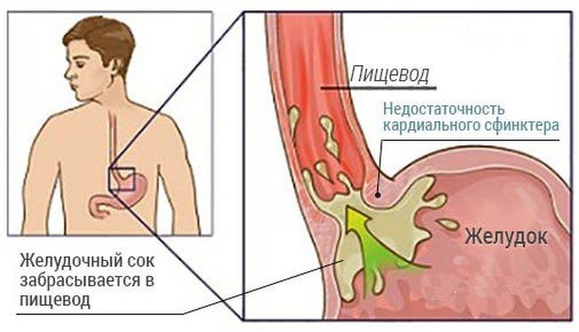При недостаточности кардии желудка желудочный сок и желчь попадают не стенки пищевода и раздражают их