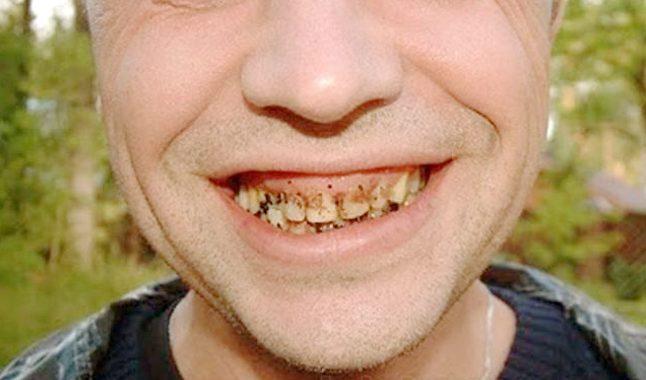 Плохой уход за полостью рта, может стать причиной несвежего дыхания