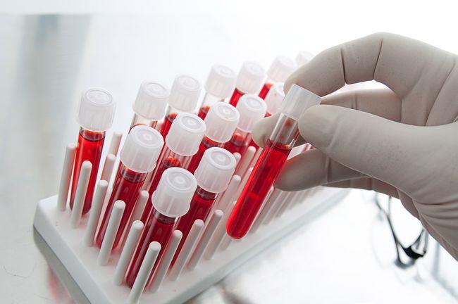 Низкий гемоглобин может привести к кислородному голоданию клеток