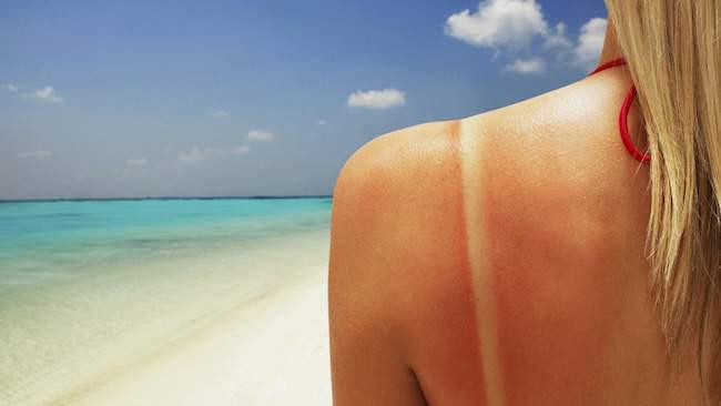 Длительное нахождение на солнце, во время пика его активности может привести к солнечному ожогу