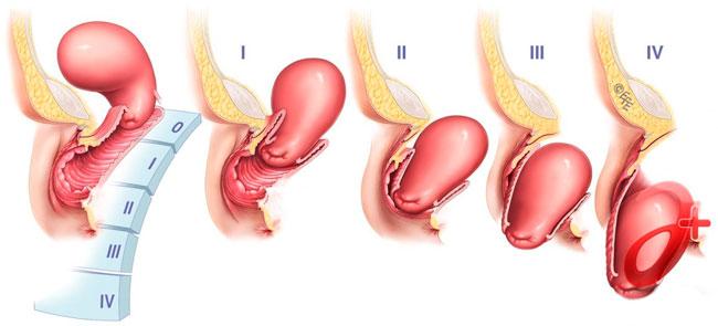 После физического отдыха или выполнения специальных упражнений возможно возвращение матки в правильное положение при первой и второй степени опущения