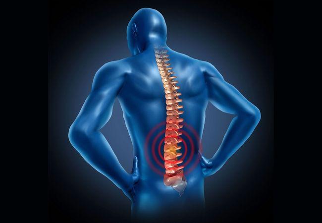 Остеохондроз поясничного отдела позвоночника - это заболевание, которое встречается у большинства людей