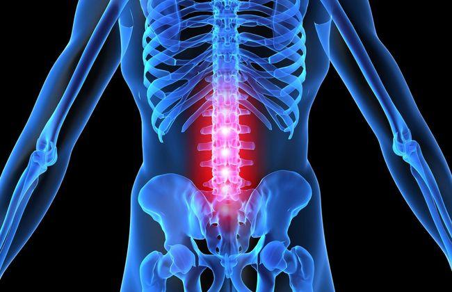 На запущенной стадии остеохондроза поясничного отдела у человека ухудшается двигательная активность