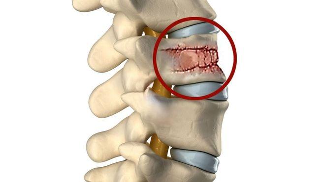 Остеопороз может стать причиной множественных компрессионных переломов позвоночника