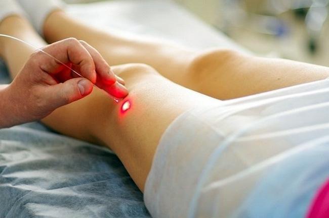 Папилломы можно лечить клинически, удаляя их с помощью лазера, радихирургическим способом, методом криодеструкции, с помощью электрокоагуляции или иссекая скальпелем